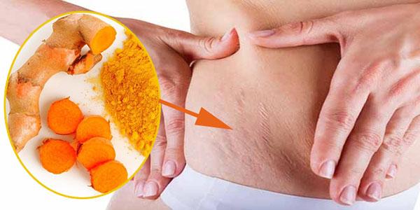 Cách trị dạn da sau sinh