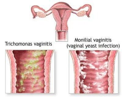 Điều trị bệnh viêm âm đạo đúng cách