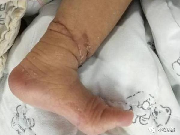 biến chứng dải sợi ối, bé sơ sinh suýt đứt chân ở trong bụng mẹ