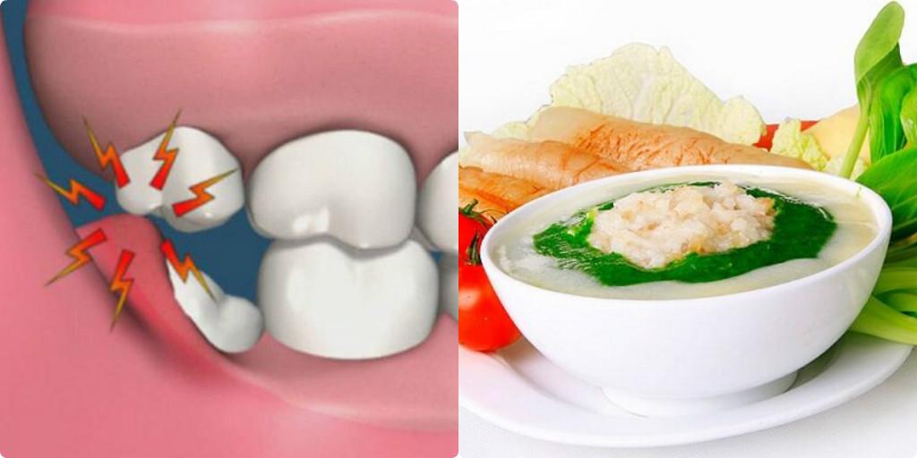 dinh dưỡng cho người mọc răng khôn, mọc răng khôn nên và không nên ăn gì