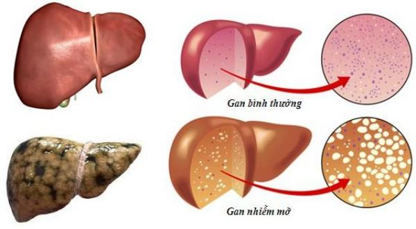 gan nhiêm mỡ, bài thuốc hay cho gan nhiễm mỡ