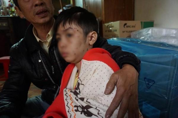 bạo hành trẻ 10 tuổi, cha mẹ bạo hành trẻ 10 tuổi sẽ phải chịu hình phạt như thế nào