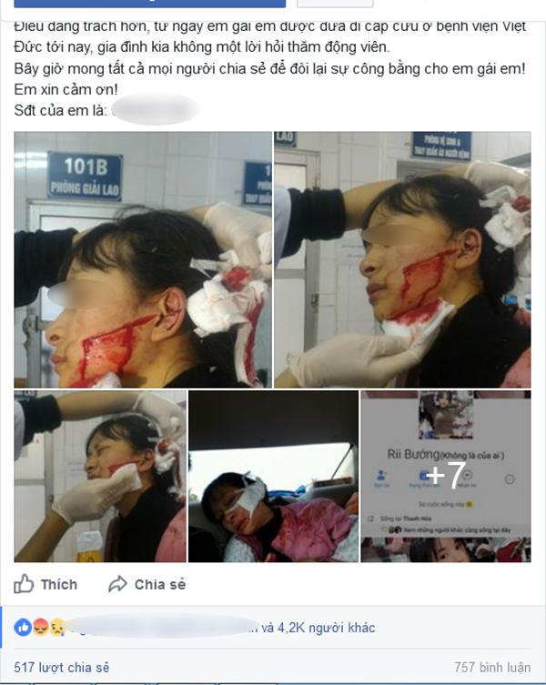 nữ sinh lớp 11 bỉ rạch mặt vì chỉ vì nghi ngờ lấy cắp mẫu quần áo về bán