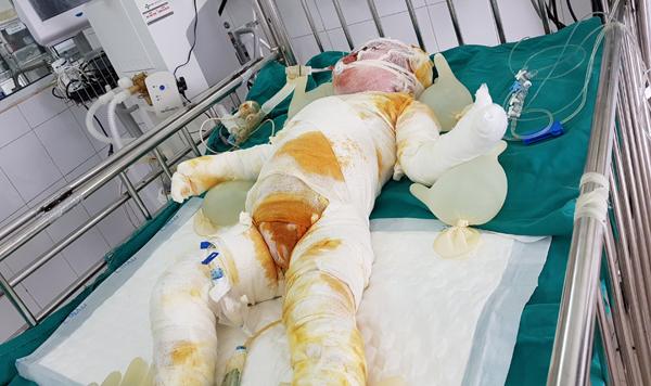 xót xa bé 3 tuổi ngã xuống hố vôi bỏng nặng nguy kich
