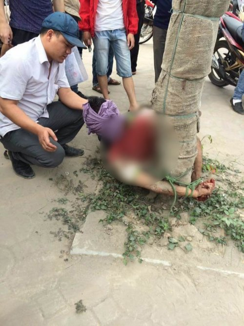 thanh niên tự tử bất thành bị chói vào gốc cây