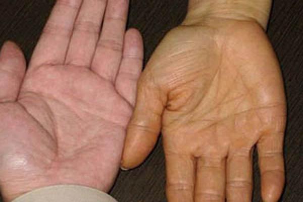 Bài thuốc hay trị chứng vàng da