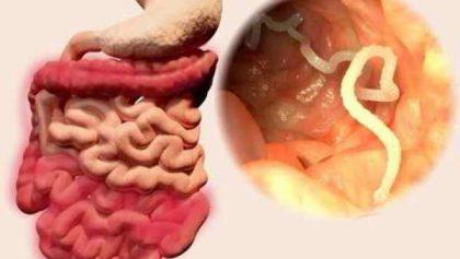 Tìm hiểu bệnh giun sán và các biểu hiện trên cơ thể người