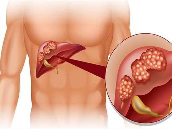Tìm hiểu nguyên nhân và dấu hiệu nhận biết ung thư gan