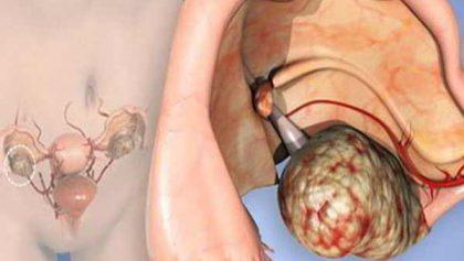 Tìm hiểu nguyên nhân và dấu hiệu của ung thư buồng trứng