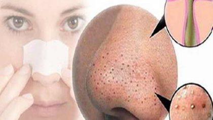 Cách trị mụn đầu đen hiệu quả tận gốc